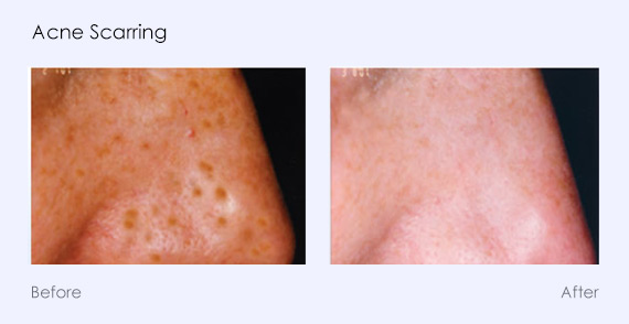 Acne Scarring Photofacial Photorejuvenation Southfield MI
