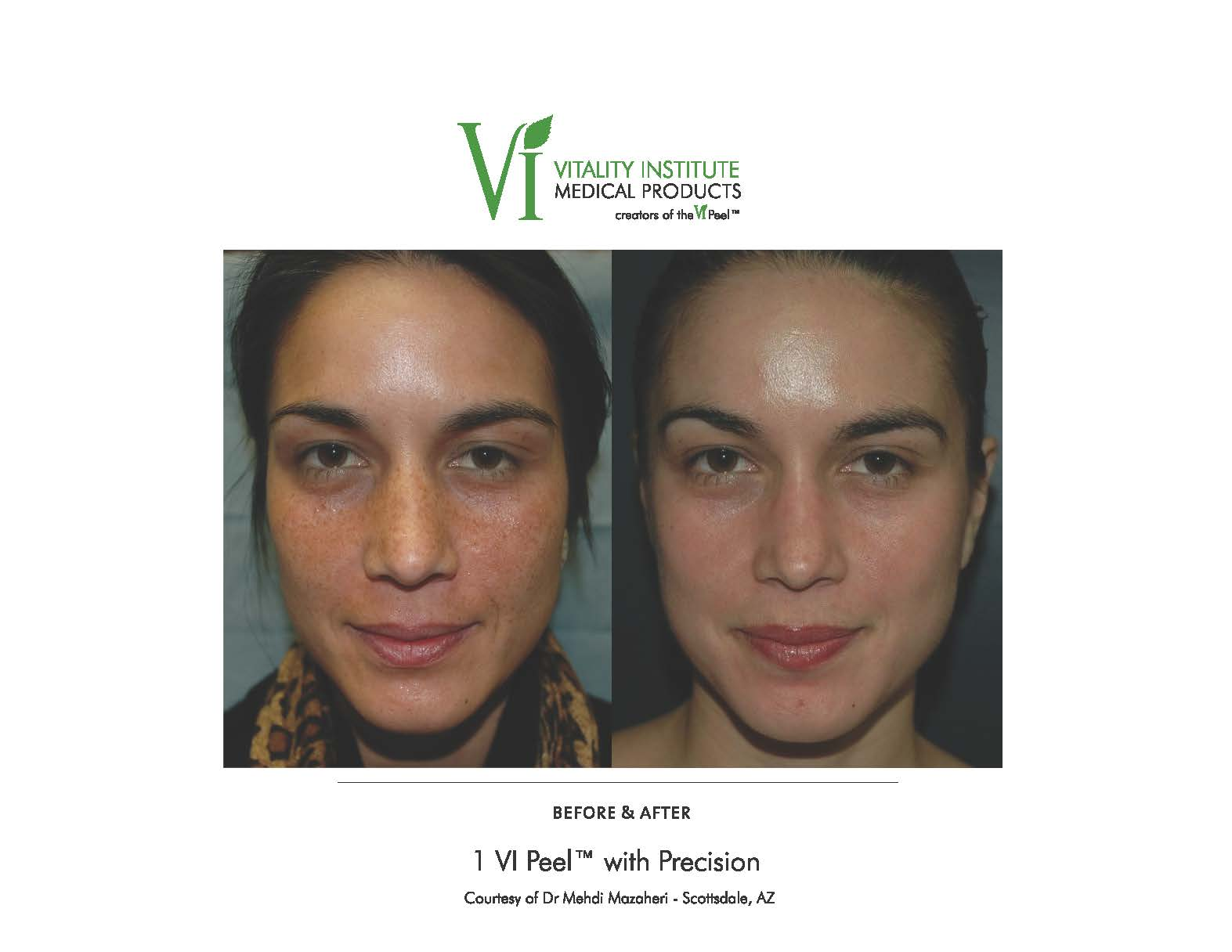 VI Peel Before and After Pigmentation Southfield MI
