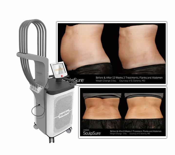 Sculpsure-Body-Contouring-Laser-fat-reduction-southfield-mi