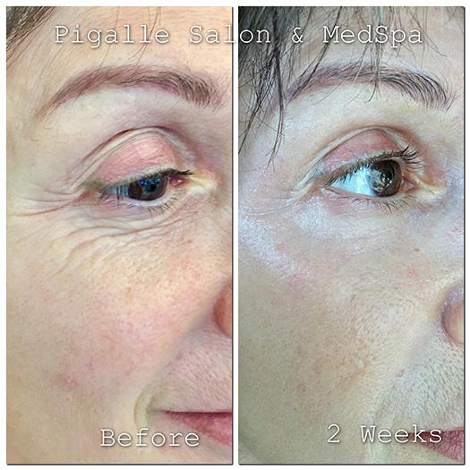 Plasma Fibroblast Lift Skin Tightening Treatment Pigalle