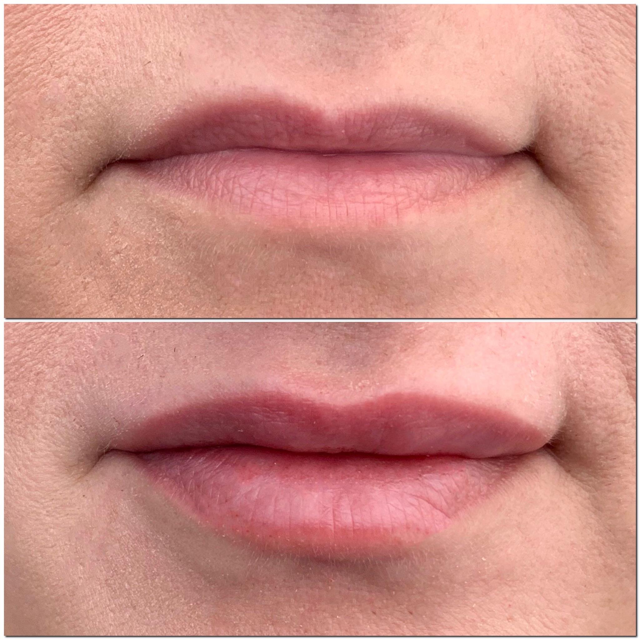 Hyaluron-Pen-Filler-Treatment-Southfield-MI-before-after